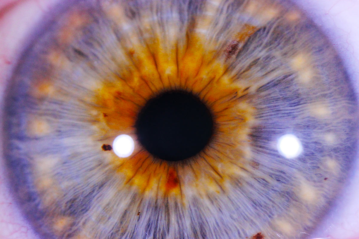 iridology diagnostics