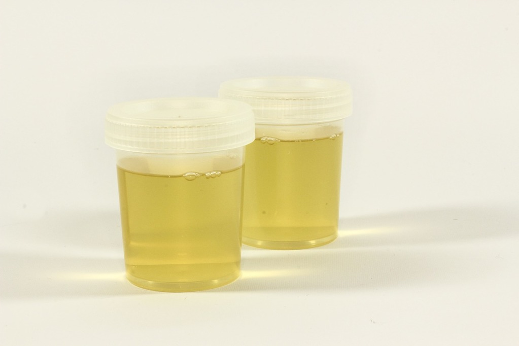 Water-how-much-should-we-drink-urine-should-be-pale-yellow